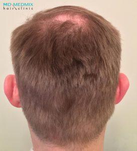 wszczepianie włosów