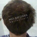 przeszczepianie włosów