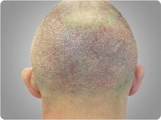 po zabiegu przeszczepu włosów