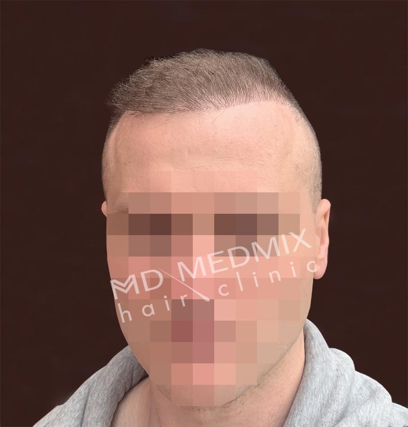 pacjent po przeszczepie włosów