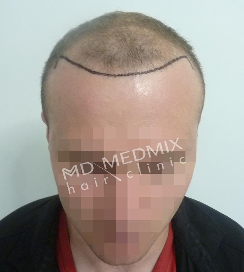 pacjent przed przeszczepem włosów