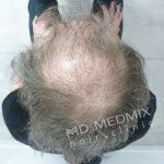przed przeszczepem włosów