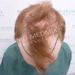 przeszczep, transplantacja włosów