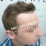 przeszczep cebulek włosów przed